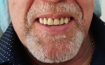 Tænder efter