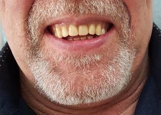 Tænder før